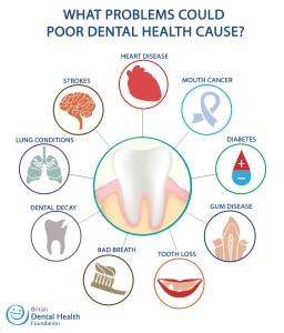dental-diseases